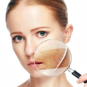 hyperpigmentation disorders treatment Market to grow at a CAGR of 7.1% From 2018 to 2023