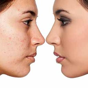 Scar Removal treatment Market Study, Synthesis and Summation 2019-2022